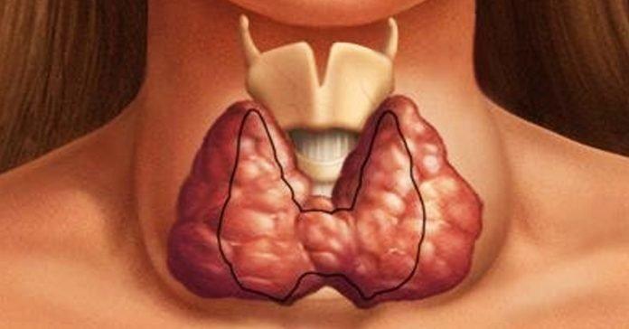 Помоги своей щитовидке быть здоровой